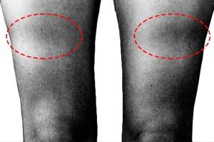 wholecontract_lipoatrofiasemicircular_prevención_mobiliario